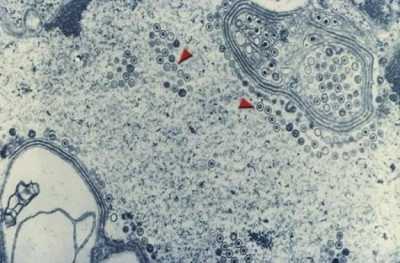 Herpes Infection In this transmission electron micrograph image of a cell, red arrows point to herpes simplex viruses inside the cell. CDC.