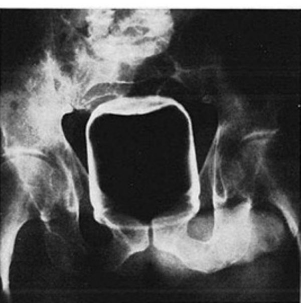 """Peanut Butter Jar That thing is huge. This defies all logic in terms of """"size of objects that can go in a butt."""" The person that did this is a pioneer in the field of putting weird stuff in a butt. (via Southern Medical Journal)"""
