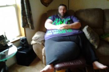 Man with huge scrotum