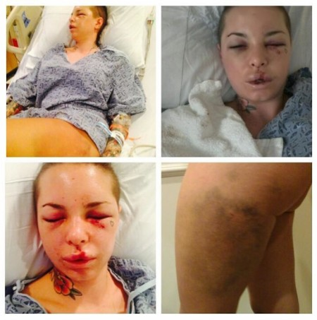 Christy Mack Describes Brutal Beating By War Machine (GRAPHIC PHOTOS)