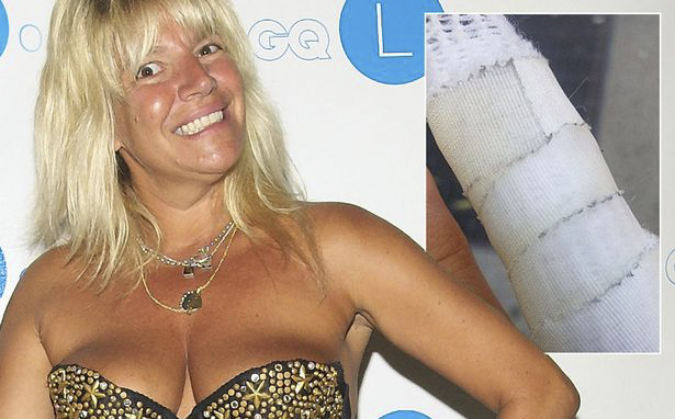 Ex-porn star Robin Byrd treated for rabies after being attacked by a raccoon